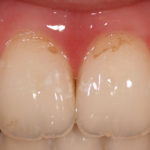 Demineralized teeth can sometimes be remineralized.