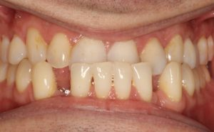 Class III Underbite creates both biting and esthetic problems