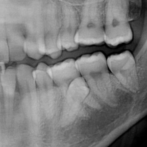 Impacted 2nd premolars - pano view