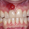 Avoid abscessed teeth by wearing a mouthguard