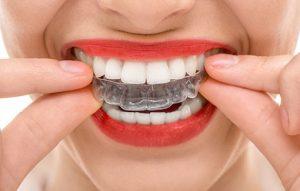 Invisalign is a reasonable alternative to braces