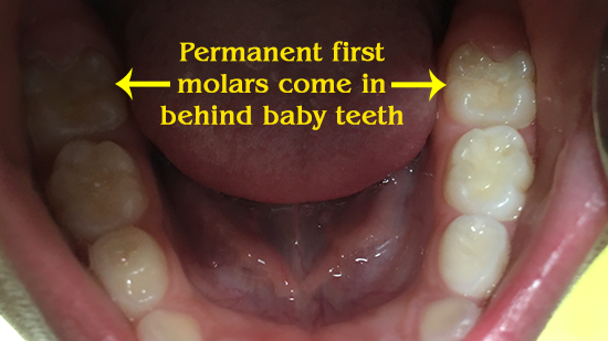 Permanent first molars come in behind the baby teeth