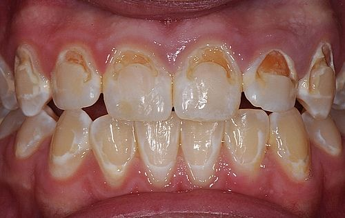 Cavities after braces due to poor oral hygiene
