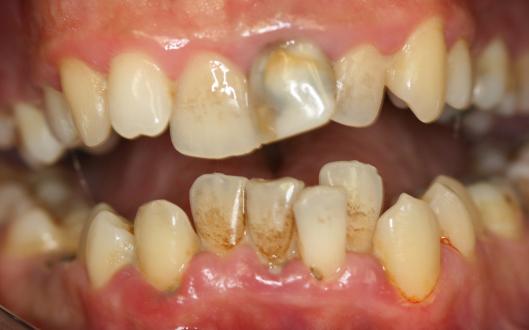Crowded teeth with cavities