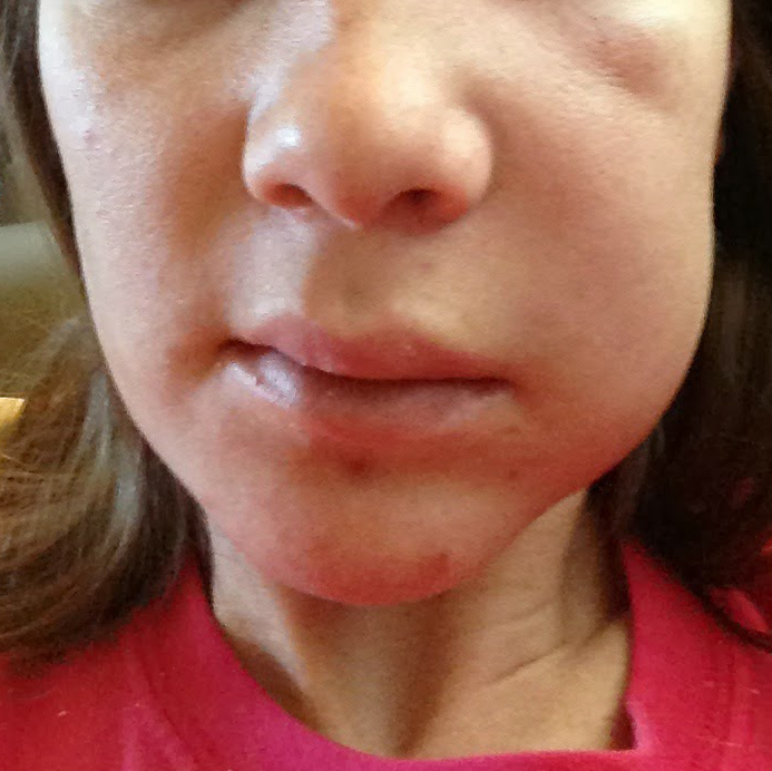 Abscess swelling