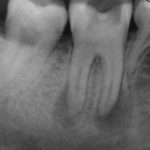 X-ray dental cyst
