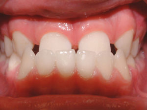 Class III Underbite makes chewing and speaking difficult