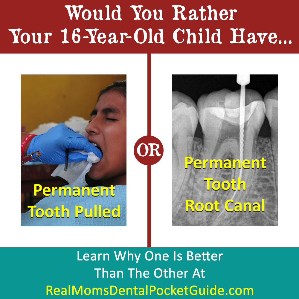 Would You Rather Your Teenage Child Have A Permanent Tooth