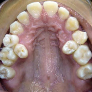 crowded second molars off arch